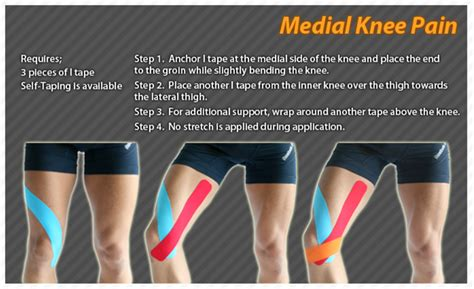 Pin on Kinesiology Tape: Ares