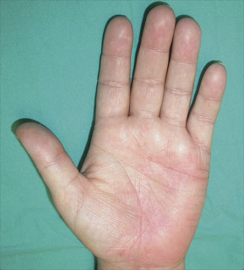 Leflunomide in the Treatment of Palmoplantar Pustulosis