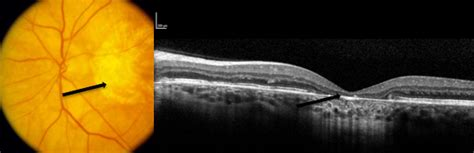 4 Tips for Assessing the Macular OCT Scan - American