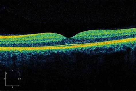 Optical Coherence Tomography in Age-related Macular
