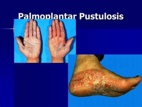 PPT - Andrews' Diseases of the Skin-Chapter 10-pg 239-253